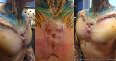 This skull implant was created by body modification artist Steve Haworth and this particular one was inserted by fellow mod artist Samppa Von Cyborg. Sick Tattoo, Tattoo You, Dermal Implants, Latest Tattoos, Body Modifications, Body Mods, Artist At Work, Art Forms, Human Body