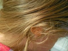 Raising Leafs: How To Remove Gum From Hair