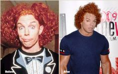 Carrot Top Plastic Surgery Gone Wrong photo