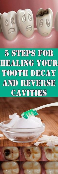 Reverse Cavities and Heal Tooth Decay With These 5 Steps