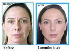 See before and after photos from our dermal fillers patients at The Cosmetic Skin Clinic. Dermal filler treatment is one of the services we provide in London and Buckinghamshire. Cosmetic Skin Clinic, Botox Cosmetic, Relleno Facial, Dry Frizzy Hair, Skin Center, Skin Primer, Wrinkle Remedies, Lip Wrinkles, Argan Oil Hair