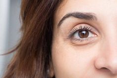 What These 11 Facial Skin Problems Are Trying To Tell You About Your Health Puffy Eye Treatment, Dark Circles Treatment, Concealer, Sport Treiben, Dark Circles Under Eyes, Les Rides, Puffy Eyes, Young Models, Tips