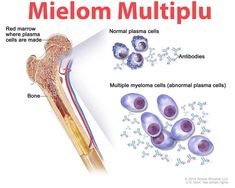 drawing shows normal plasma cells, multiple myeloma cells (abnormal plasma cells), and antibodies. Also shown is red marrow inside bone, where plasma cells are made. Acute Myeloid Leukemia, Cell Forms, Medical Laboratory Science, Multiple Myeloma, Bone Cancer, White Blood Cells, Health Advice, How To Stay Healthy, Herbalism