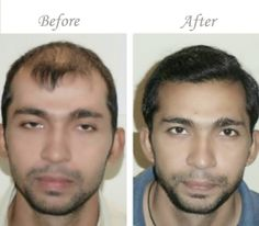 Hair transplant in Pakistan. ILHT uses state of the art technology to provide natural looking growing hair back with all hair restoration services for both men and women.