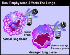 Lung Damage - via COPD International