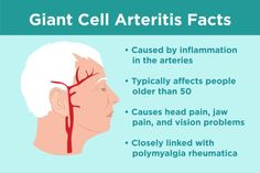 Giant cell arteritis, or temporal arteritis, is an inflammatory disease that affects large blood vessels in the head. Learn about CGA symptoms & treatment. Jaw Pain, Neck Pain, Chronic Pain, Fibromyalgia, Giant Cell Arteritis, Polymyalgia Rheumatica, Arteries And Veins, Things Under A Microscope, Diabetes Treatment