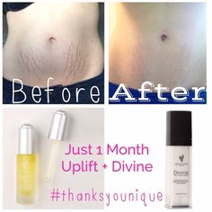 I just blew myself away with my results in a month of using Younique Uplift and Divine Moisturizer!!! These are my own well deserved stretch marks that I love. I can tell you I have used everything... Bio-Oil, Palmers Cocoa Butter, Arbonne Conditioning Oil, Mederma, Mederma PM, LUSH Cocoa butter massaging bar and not one changed the colour in my marks until now!!! Feel free to SHARE with other women/men https://www.youniqueproducts.com/SavannahBall