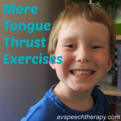 More Tongue Thrust Exercises (myofunctional speech therapy)