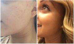 This is a before and after of my skin after my 14 day challenge, using #aloeclear by #aloette love how clear and radiant my skin looks and feels. It's soft to touch and has cleared all breakouts big and small by 80%! Very impressed and will continue to order this product!