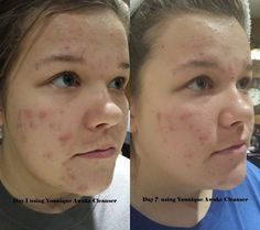 Know someone who needs a new skin care regimen? My friends step-daughter was using Pro-Active and it obviously was no longer working..not to mention that her pillowcase and clothes were bleached from it! What?!? This cannot be good for our skin and essentially it enters our bloodstream! http://www.YouSkinnyFast.com/