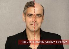 Mezoterapia na porost włosów. Najnowszy post już na blogu!
