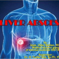 .   pyogenictrauma amebic TB candida   oM > F 7:1 Bacterial o40-50 million amoeba Most common infections/year worldwide M > F 3:1 oAge Extremes. http://slidehot.com/resources/liver-abcess.29968/