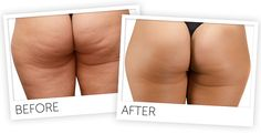 Dr. Charles Cellulite Factor System Book Solution Glowing Testimonials - Really Workouts