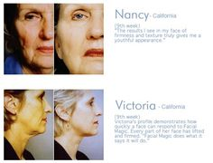 Facial Magic: Before & After Photos  http://www.facialmagic.com #facialexercise #facialmagic