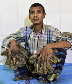 Doctors in Bangladesh came across a very rare disease last Monday,Feb.1st,2016. The staff  of Ducan University Hospital is getting ready to operate on  Abul Bajandar, who developed warts on his hands and feet ,which look like tree bark.POOR GUY!