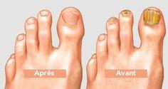 Même les médecins sont étonnés : trempez vos pieds dans ce mélange pour retirer naturellement les champignons de vos orteils !