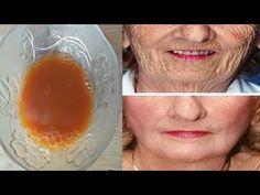 Wiek 50 lat wygląda na 30 lat, zmarszczki znikają za 3 dni, jak usunąć zmarszczki - YouTube Lower Belly, Skin Care, Fruit, Beauty, Food, Youtube, Diet, Skincare Routine, Essen