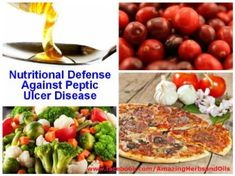 Nutritional Defense Against Peptic Ulcer Disease. These might help from agravating peptic ulcers that can lead to complications, like bleeding or holes, in the stomach or small intestine. Ulcer Diet, Body Cleanse Diet, Peptic Ulcer, Stomach Ulcers, Good Health Tips, Detox Plan, Herbal Remedies, Natural Remedies, Natural Health