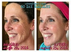 """Check out Lisa's results! She states, """"Guys, THIS IS ME!! How many wrinkles, freckles, or even years do you think I got rid of IN JUST 60 DAYS?! Do you believe me now when I say how amazing these products are?? I used the Reverse and Redefine regimens, and I sometimes added in the roller, eye cream, night renewing serum, and lip renewing serum."""" Are you ready for your 60 day (money back guarantee) transformation? #sundamage #wrinkles #brownspots #lookbetter #feelbetter"""