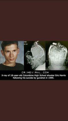X-ray van Eric Harris na zijn zelfmoord. Columbine High School Massacre, Famous Serial Killers, Natural Born Killers, Creepy Stories, Draw On Photos, My Life Style, School Shootings, True Crime, Being Ugly