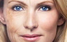 Para Homens e Mulher: Nova solução anti-envelhecimento chega ao Brasil