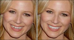 All types of teeth correction can be done with photo editing. View before and after sample.