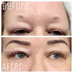 3D Microblading Eyebrows technique for the perfect eyebrows. Solution for people suffering from alopecia. Before and after photos.