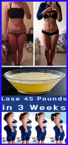 Many people still think that Losing weight, tighten the belly and have a slim wait is just a matter of beauty. 45 Pounds, Lose 15 Pounds, Health And Wellness, Health Fitness, Women Problems, Tag Remover, Teeth Care, Weight Loss Drinks, Detox Drinks