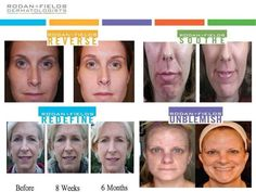 before and after rodan and fields - Yahoo Search Results     For Beautiful and Healthy Skin, Find Out What Regiment is Best For You using Our Solution Tool! Feel Free to Contact Me !