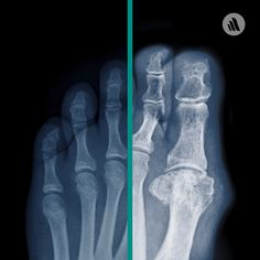 X-rays of the affected joint may be taken to look for bony erosions or tophi but are probably unnecessary if the diagnosis of acute gout has been established by synovial fluid analysis.  Click to learn more about causes, symptoms, and treatment.