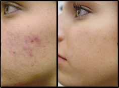 Best Home remedies for acne marks This is a quick home remedy for acne scars that can give you effective results.home remedies for acne marks Acne scars are definitely something every girl wants to get rid of.