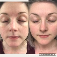 Polishing Peel Microdermabrasion in a bottle resurfaces and smoothes Polishing Peel Nuskin, Price Point, Perfect Timing, Facial Treatment, I Site, Skin So Soft, Things To Think About, Things To Sell, Anti Aging Skin Care