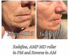 """Your results on our products are amazing, Bobbi Duty! Bobbi said: """"Just look at what REDEFINE did for my face. I love this product!""""  I'd love to help you with your skin care concerns. Message me today!"""