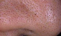 Zabudnite na ovisnutú kožu! Tento prírodný liek jej vráti zabudnutú elasticitu vašej kože   Báječné Ženy Women, Skin Care, Beleza, Pimples, Women's, Skin Treatments, Skincare, Asian Skincare