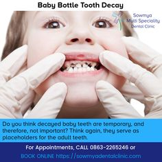 Paediatric Dentistry is a branch of dental science which deals with specialization in children's dental issues and oral problems. Sowmya Multi Speciality Dental Clinic has the best paediatric dentist in Guntur. Dental Hygiene, Dental Care, Baby Bottle Tooth Decay, Decay Art, Dental Kids, Pediatric Dentist, White Teeth, Baby Bottles, Pediatrics