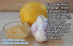 Le remède naturel pour soigner rapidement les maux de gorge