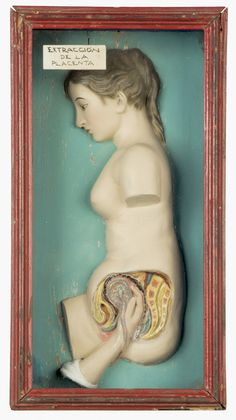 Medical model, part of the Wellcome Collection ('extraction of the placenta')