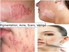 Results - White Patches on Skin - Noble Vitiligo Clinic