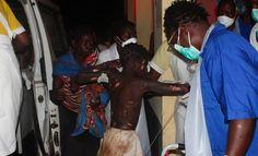Al menos 73 muertos en Mozambique por la explosión de un camión cisterna Cerca de un centenar de personas han resultado heridas y se teme que el número de fallecidos aumente Un niño herido por la explosión de un camión cisterna en Mozambique, este jueves a su llegada al hospital.