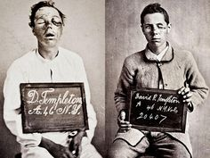 Civil War bulllet wounds of the eye. During the Civil War, an army surgeon named Dr. Reed Bontecou photographed wounded soldiers. Shown here are photos of a soldier from New York before and after his battlefield wounds to the eyes were treated.