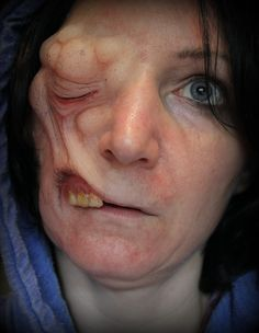 Prosthetic makeup created and applied by Rhonda Causton(Reel Twisted FX)