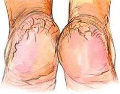 Amazing: Grind a handful of rice until u get a fine but coarse flour. Add a few spoons of raw honey to the mixture along with enough apple cider vinegar to obtain a thick paste. If the cracks are very deep, add a spoon of olive oil. Soak feet for 20 minutes & gently massage with this paste. Might need this for later in life...