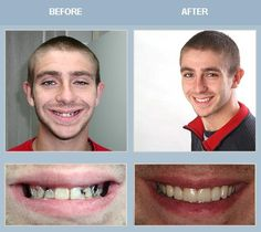 Want a beautiful white smile; get cosmetic dentistry.................