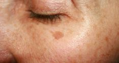 Brown spots or age spots are quite common in people. They can be bad for one's self-confidence as they mostly appear with age. That's why they're also called age spots.