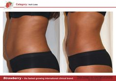 Before and after  Inch loss Non-invasive laser lipo