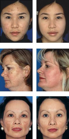 before and after of #obagi Nu-Derm, medical based skin care products