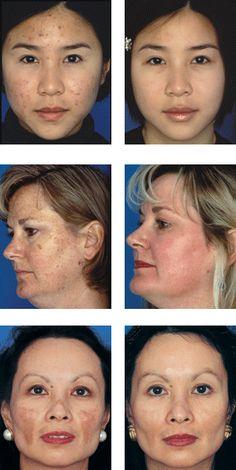 Antes y Después del uso de productos de Nu Skin para el rostro. Acné, manchas, hiperpigmentación. Para más información contáctame +57 3005235388 Distribuidor autorizado Mail sanmarcelest@hotmail.com www.bellezacelestial.nuskinops.com