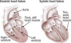 Tipos de insuficiencia cardíaca diastólica y sistólica: