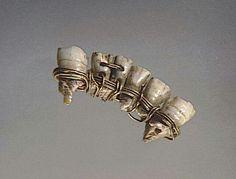 Dental bridge, 6th century BC.