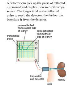 Displaying ultrasound on an oscilloscope,